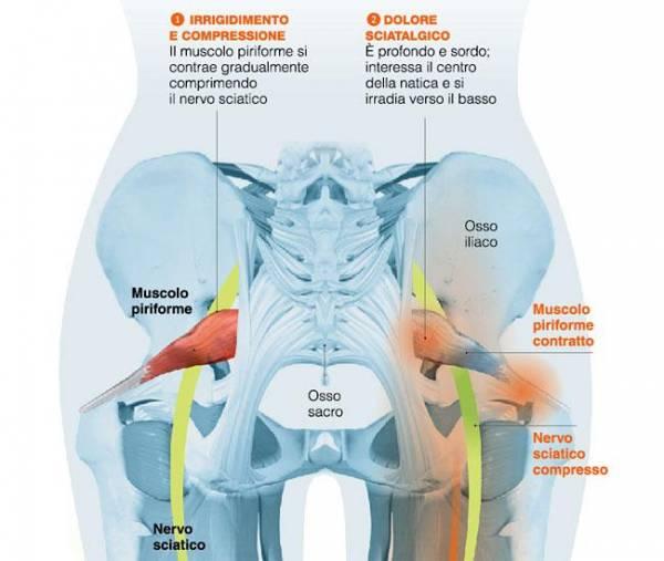 dolore natica e gamba